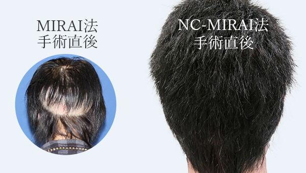 自毛植毛で後頭部は2つ施術方法がある!後頭部を刈り上げない施術法とは!