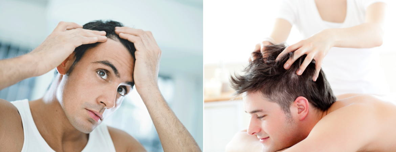 軟毛ヘアで後悔しないための薄毛予防ケア≪育毛剤ベスト6≫